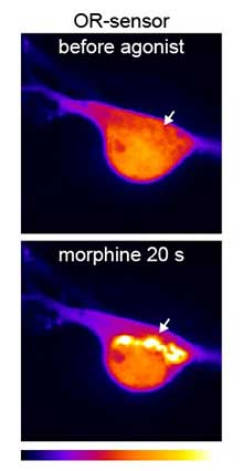 Study upends conventional view of opioid mechanism of action
