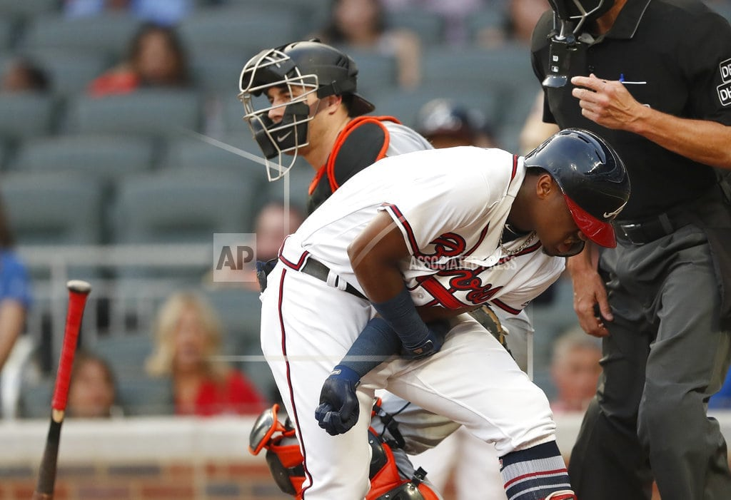 ATLANTA | Braves' Acuna back in lineup after being plunked with pitch