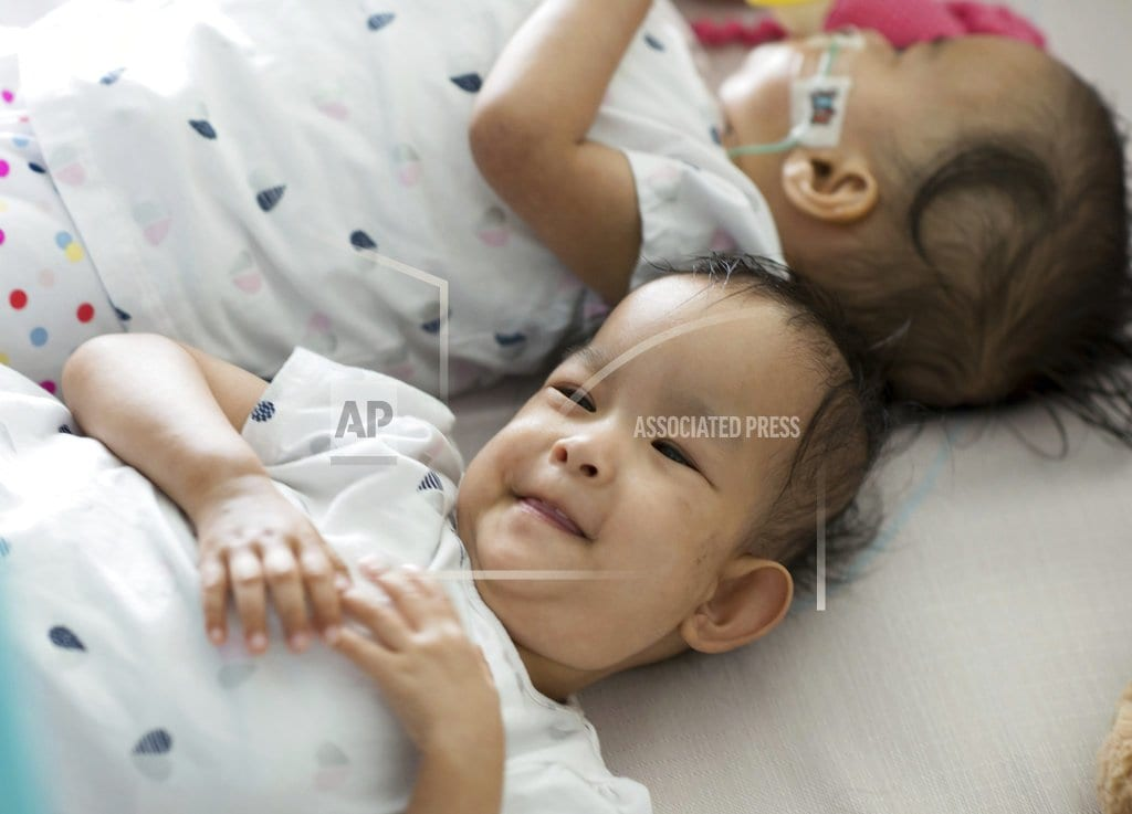 SYDNEY | Twins separated by surgery are healing, sticking together