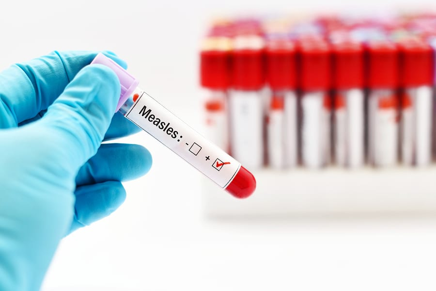 Michigan News: Additional exposure locations identified in measles outbreak