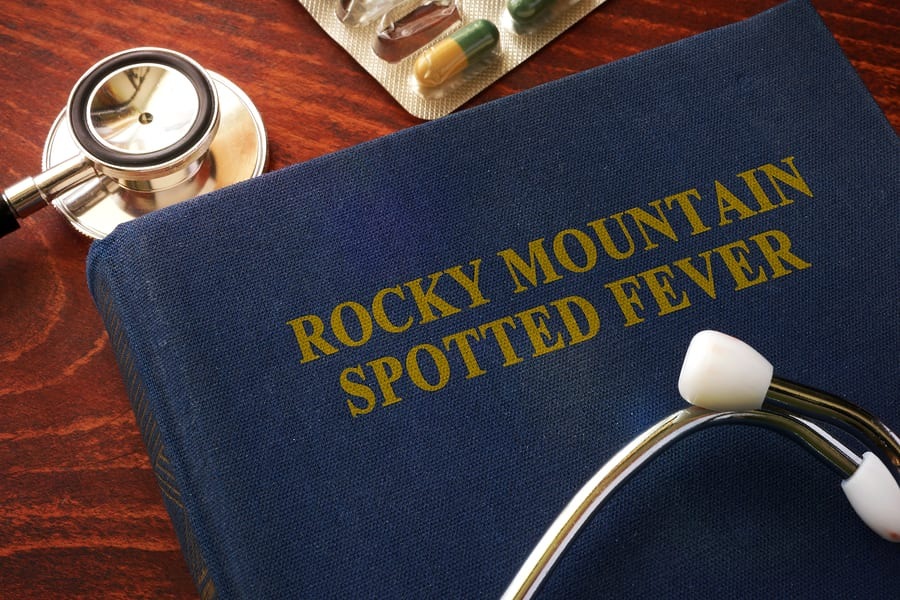 CDC News: CDC Creates Interactive Training for Diagnosis, Management of Rocky Mountain Spotted Fever